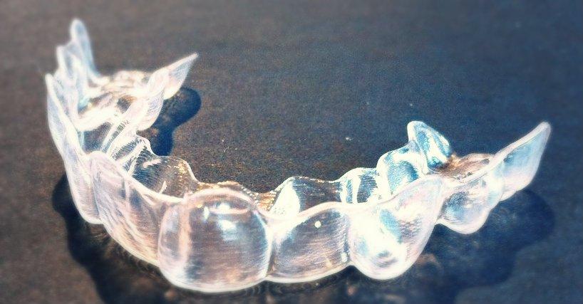 invisalign alternative zur zahnspange